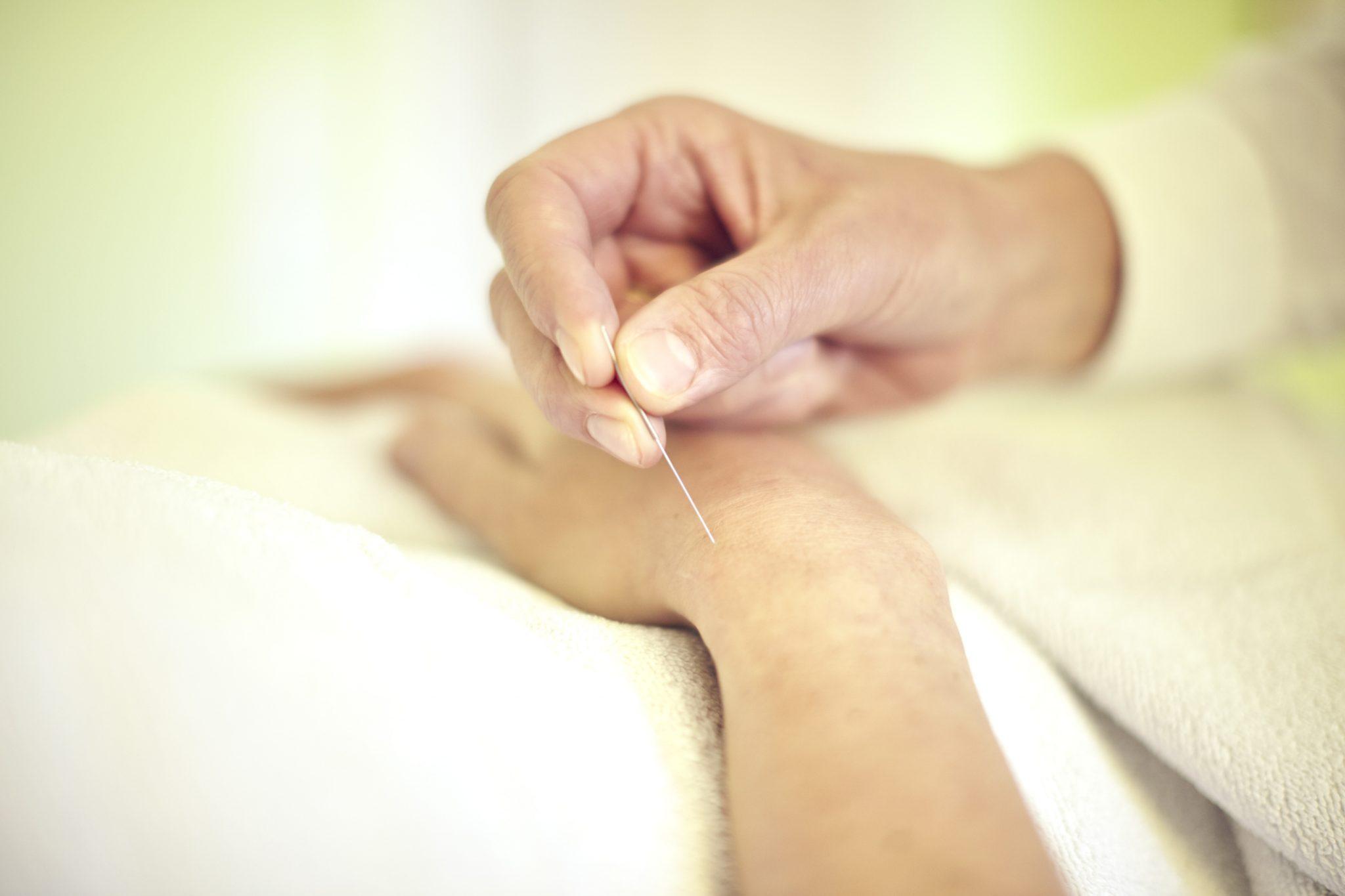 Therapieform der Traditionellen Chinesischen Medizin TCM Akupunktur